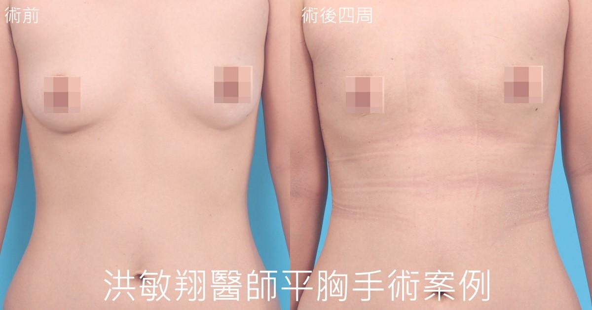 乳暈平胸手術案例正面