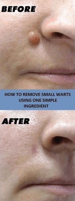 Want To Get Ride of Warts Then Try These 10 Most Amazing Natural Ways