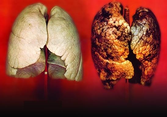 Οι καρκινογόνες ουσίες του τσιγάρου - Ποιες σοβαρές ασθένειες προκαλεί το κάπνισμα εκτός από τον καρκίνο;