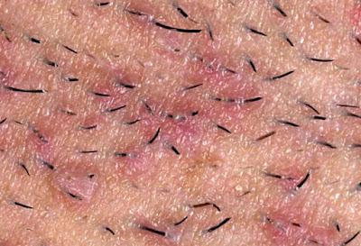 الشعر تحت الجلد