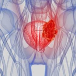 Nova terapia para tratamento de câncer de bexiga avançado