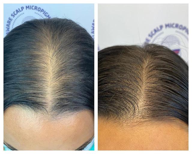 Utilisez le gingembre en masque capillaire pour fortifier et pousser vos cheveux