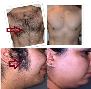 Cure herbals permanent hair removal reviews