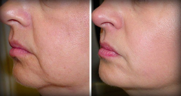 No More Wrinkles And Sagging Skin On Your Face – 2 Ingredients Only