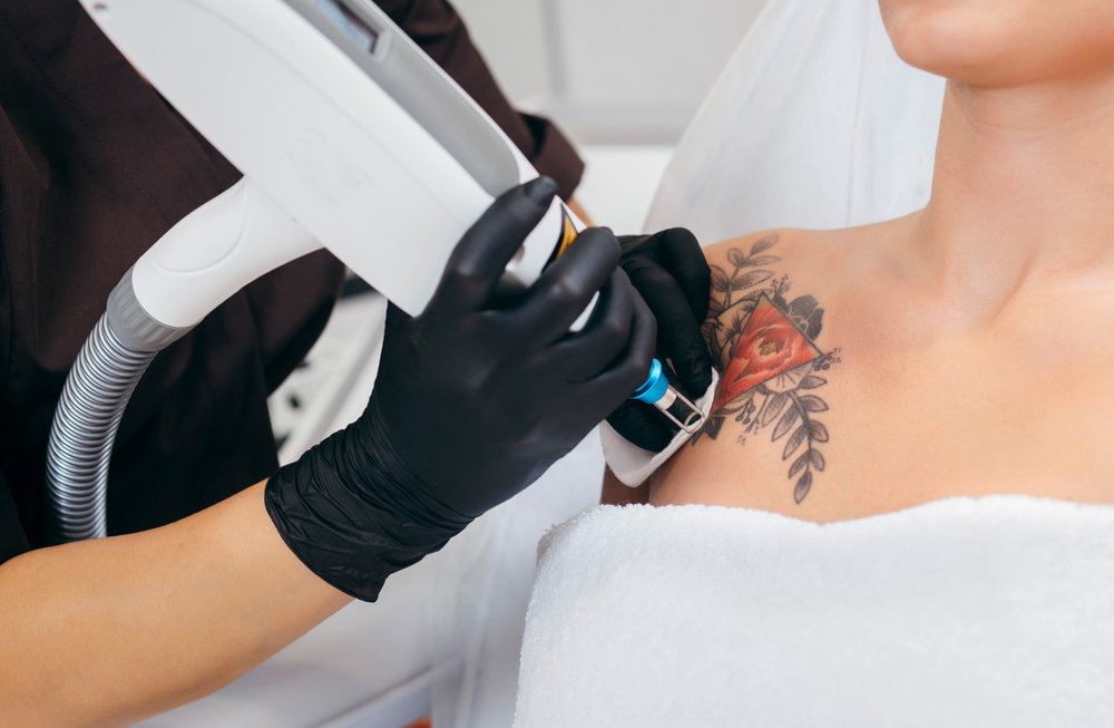 The Best Laser Tattoo Removal Service For Quick Removal