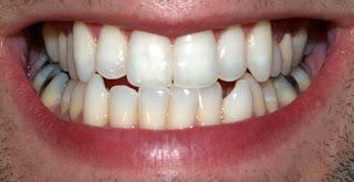 ما أفضل معجون أسنان للتخلص من مشاكل الأسنان