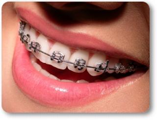¿Qué es la odontología precautoria? Profesional en Zaragoza