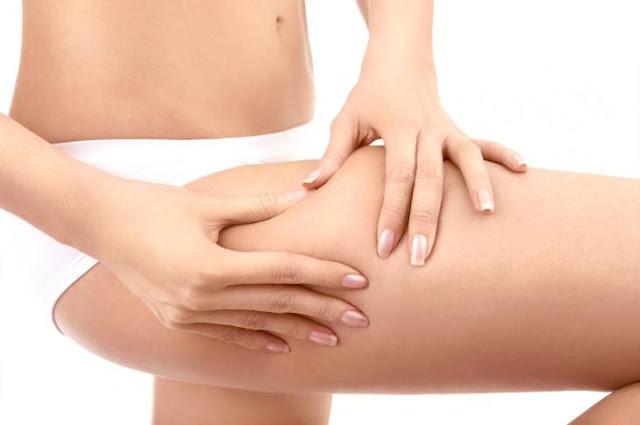 dicas prevenir tratar celulite