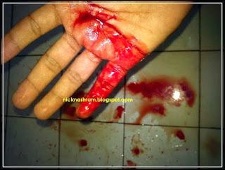 luka kena pisau