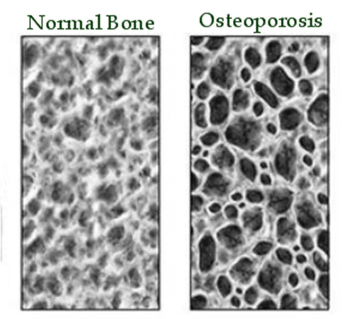 You Can Prevent Osteoporosis Related