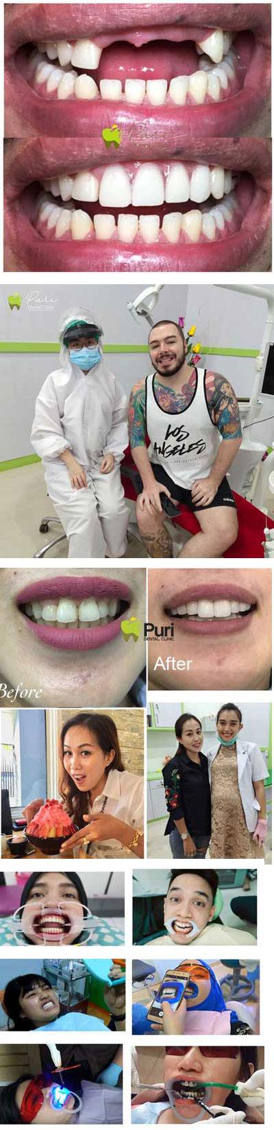 dokter gigi medan bagus harga termurah