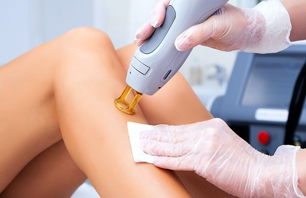 safe affordable laser hair removal treatment smooth skin service