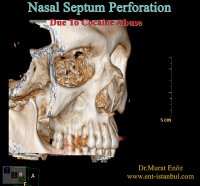 Nasal Septum Perforation Due To Cocaine Abuse