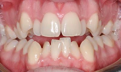Niềng răng không nhổ răng