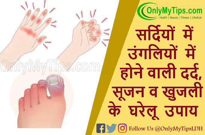 ठंड की वजह से हाथों पैरों की उंगलियों में होने वाली सूजन, दर्द व खुजली के घरेलू उपाय   Swelling in fingers, Chilblains in winter Treatment in Hindi