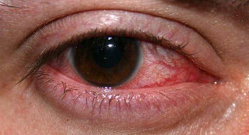 Silmätulehdus Oireet
