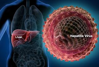 Hepatitis - Penyebab, Gejala, Pengobatan dan Penularan
