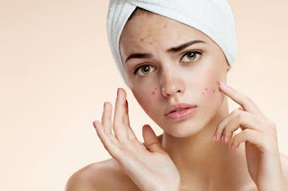 Acne Marks Removal Home Remedy Ideas You Need to Try