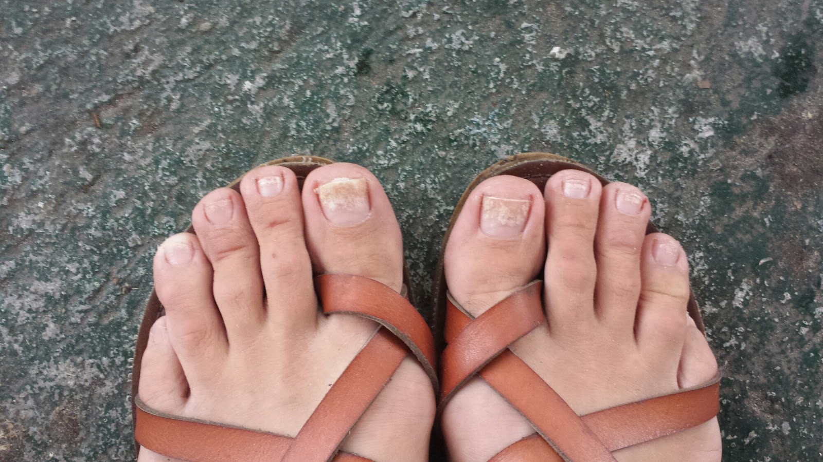 If You Have A Toenail That Looks Brittle Then Can Easily Get Rid Of Toenails With