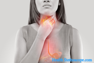 What You Must Know About Gastroesophageal Reflux Disease ?