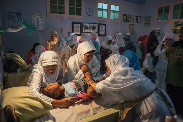 Sunat Perempuan Yang Berbahaya Tapi Umum Dilakukan Di Indonesia