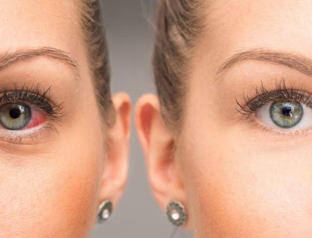 اعراض ارتفاع ضغط العين وكيفية قياس ضغط العين وأكثر أشخاص معرضون للإصابة به