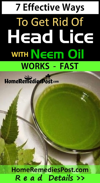 Neem Oil For Lice, Neem Oil For Head Lice, Neem Oil Head Lice, Neem Oil And Head Lice, How To Use Neem Oil For Head Lice, Neem For Lice, Neem For Head Lice, Neem Head Lice,