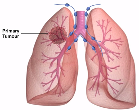Stage 4 Lung Cancer Symptoms of Dying
