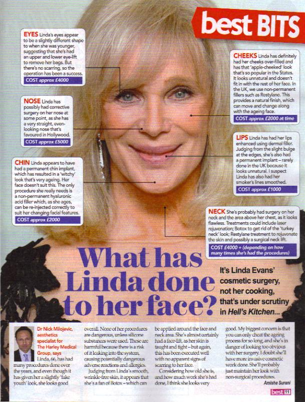 Linda Evans Plastic Surgery Before And After Facelift