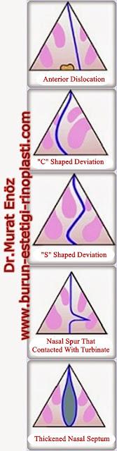 Types of Nasal Septum Deviation