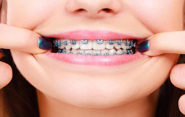 Melbourne Orthodontist