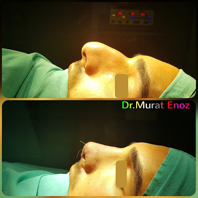 Nose job in men,Rhinoplasty in Men Istanbul,Male nose aesthetic surgery In Turkey,