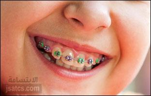 اسعار تقويم الاسنان في دبي