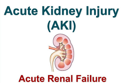 Acute_Kidney_Injury_Failure_AKI.jpg