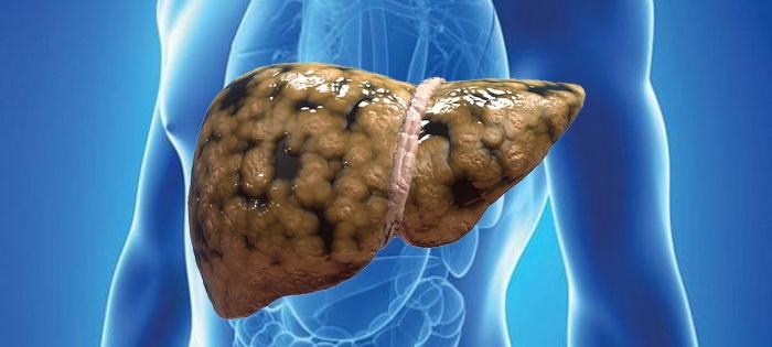 suplemen alami fatty liver
