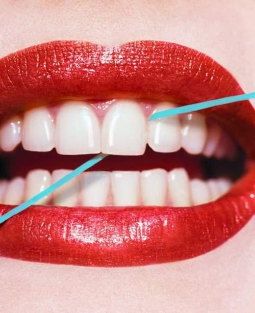 Гигиена полости рта после имплантации зубов