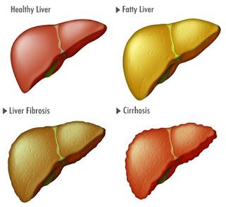 Sirosis Hati, Penyakit Pada Hati, Pencegahan dan Pengobatan Penyakit Hati