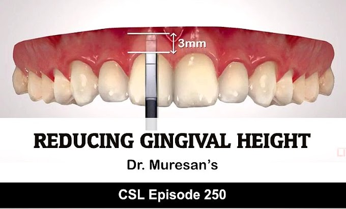 GINGIVAL ESTHETICS: Reducing Gingival Height - Dr. Muresan's