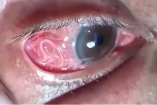'Verme dentro de olho não é causado por ingestão de peixe cru', diz oftalmologista sobre vídeo que circula no WhatsApp