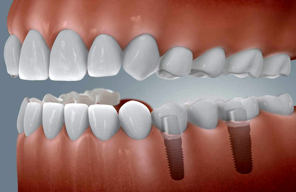 DENTAL IMPLANT maintenance