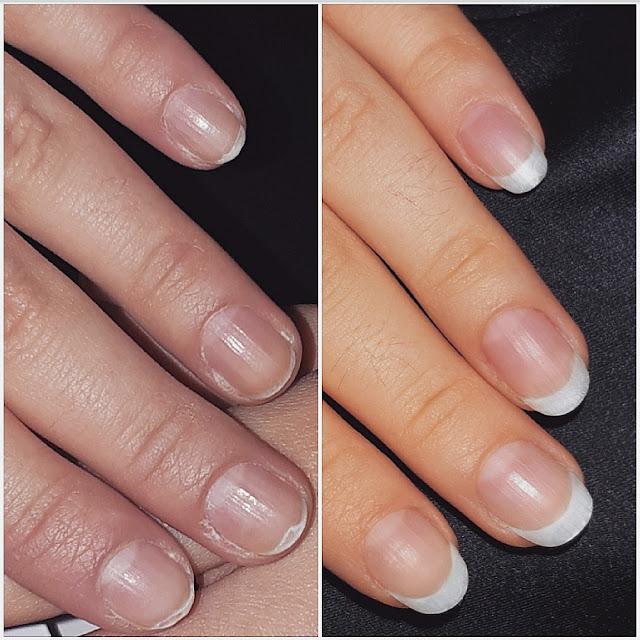 kako obnoviti uništene nokte