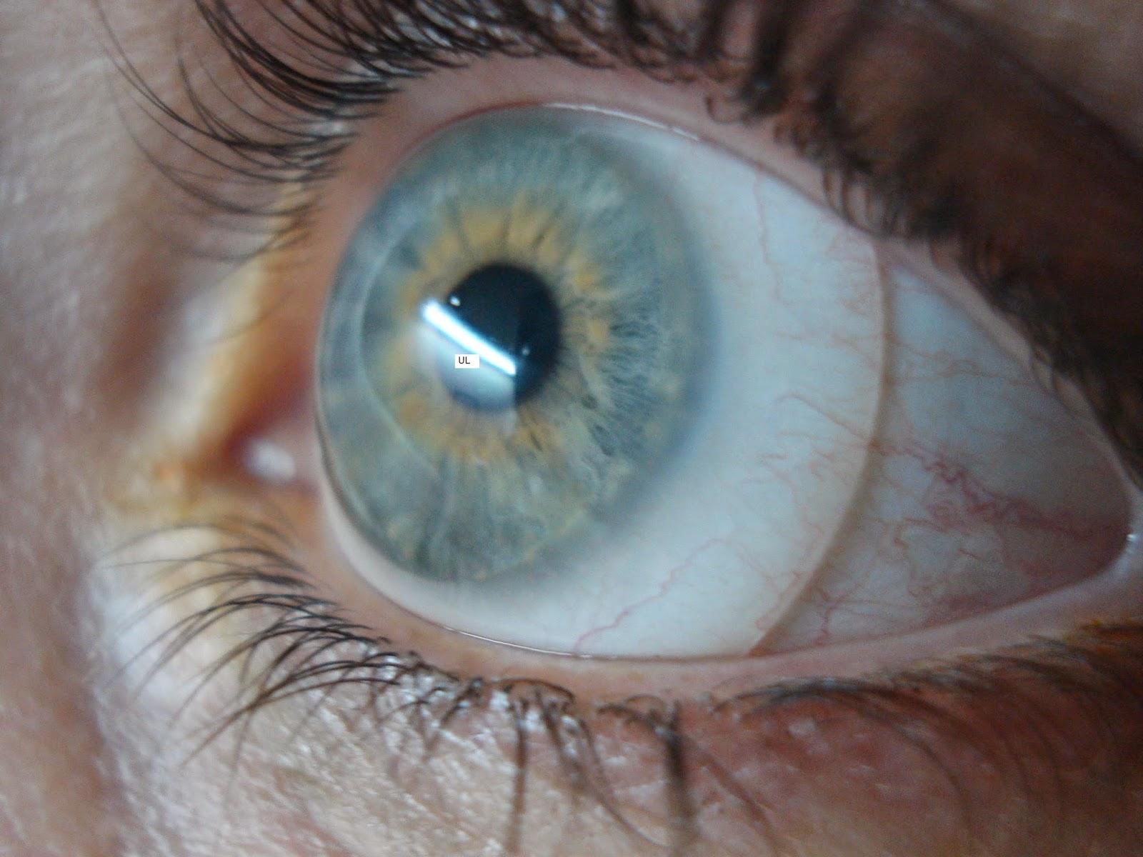 36225a7f1 IOSB - Instituto de Olhos Dr. Saul Bastos: Lentes Esclerais em Porto ...