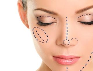 Rinoplastia, trabajo de la nariz