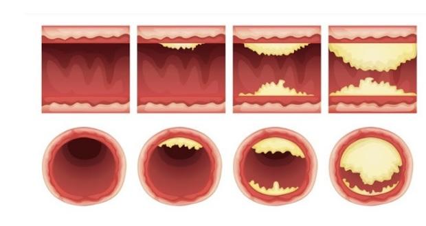 Ushqimet që zhbllokojnë arteriet dhe mbrojnë nga goditjet në zemër