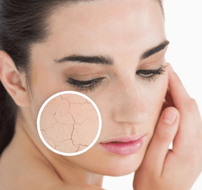 How To Know If Your Facial Skin Is Dry: The Main Signs