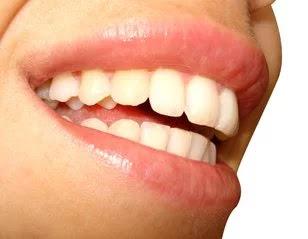 كيف تجعل أسنانك بيضاء بطرق حصرية.