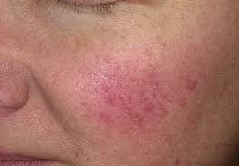 Types Of Skin Problems On Face