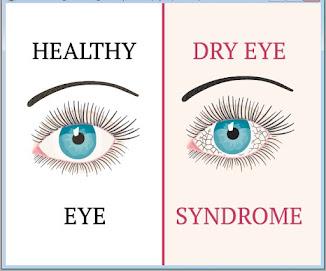 Insto_Dry_Eyes_Obat_Tetes_Mata_Yang_Tepat_untuk_Mata_Kering_ Mata_Sepet_Mata_Pegel_Mata_Perih_Mata_Lelah