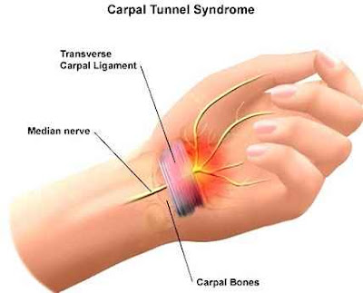 carpal tunner syndrome