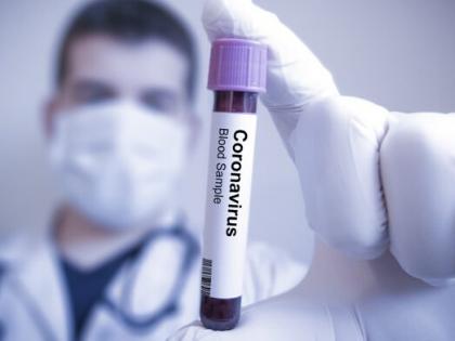 Virus Corona Mewabah, Kita Harus Bagaimana?